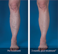 05_Leg_Before_After_Photo-e1441906227728